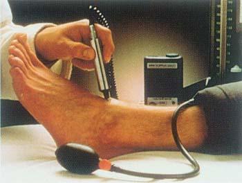 Exame doppler vascular
